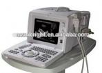 Ultrasount